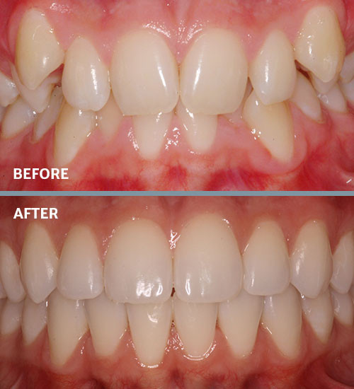 Before and after crowding braces