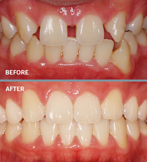 Treatment for missing teeth