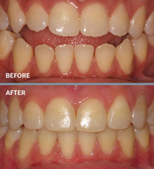 Jaw Surgery | Fruge Orthodontics