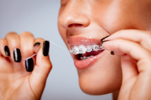 braces flossing tips