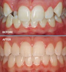 Crossbite | Fruge Orthodontics