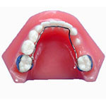 Space maintainers retain space for children who lose baby teeth early
