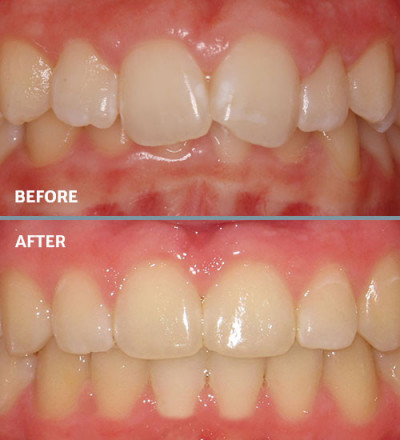 Before and after overbite treatment