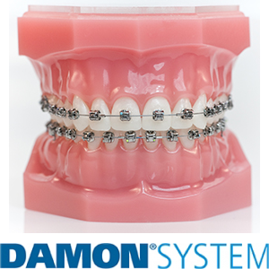 Damon braces are smaller than traditional braces
